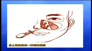 上颌窦出血坏死性息肉切除术