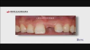 上颌前部单颗牙缺失——引导骨再生、同期种植术