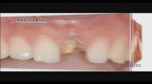上颌前部单颗牙缺失——拔牙位点保存、延期种植术
