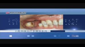上颌后部多颗牙缺失——侧壁开窗上颌窦底提升、同期种植术