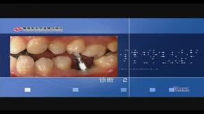 下颌后部单颗牙缺失——不翻瓣的种植体植入技术